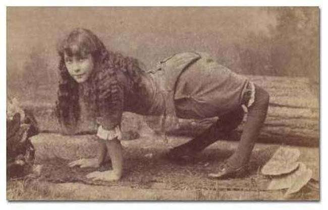 I Can't Believe These People With These Abnormalities Actually Existed.