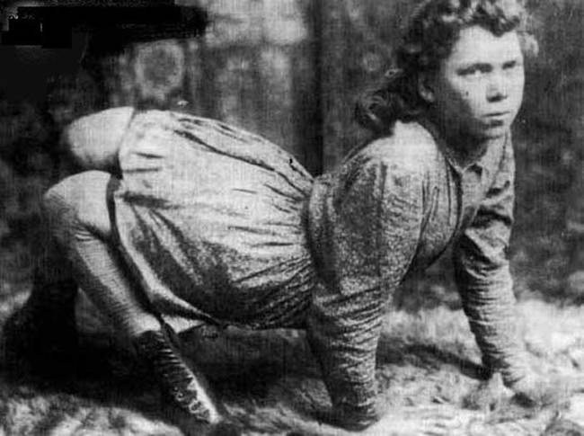 During her life she worked as a circus performer, earning an impressive $200 a week. She lived from 1870 to 1921.