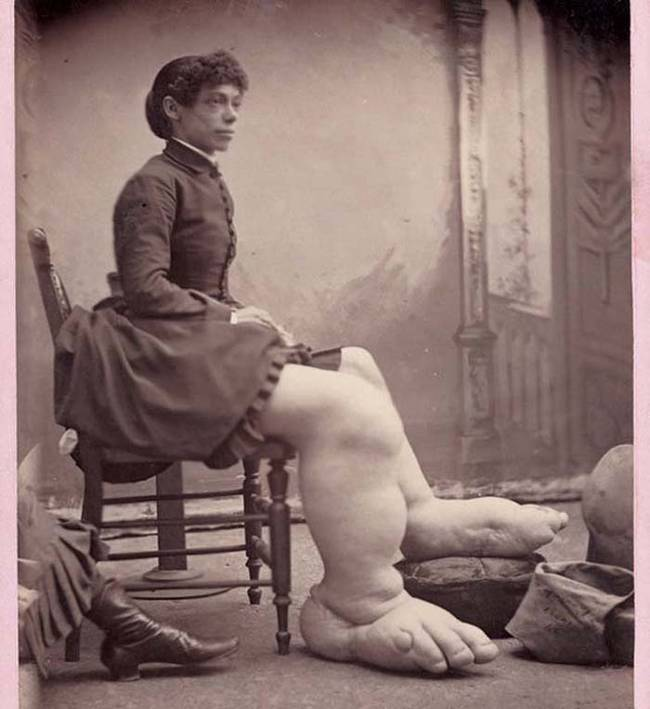 "2.) Fannie Mills, also known as ""The Ohio Big Foot Girl."""