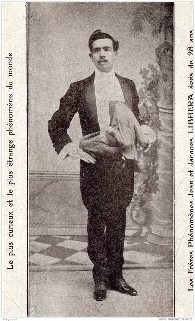 """5.) Jean Libbera, also known as """"The Double-Bodied Man."""""""