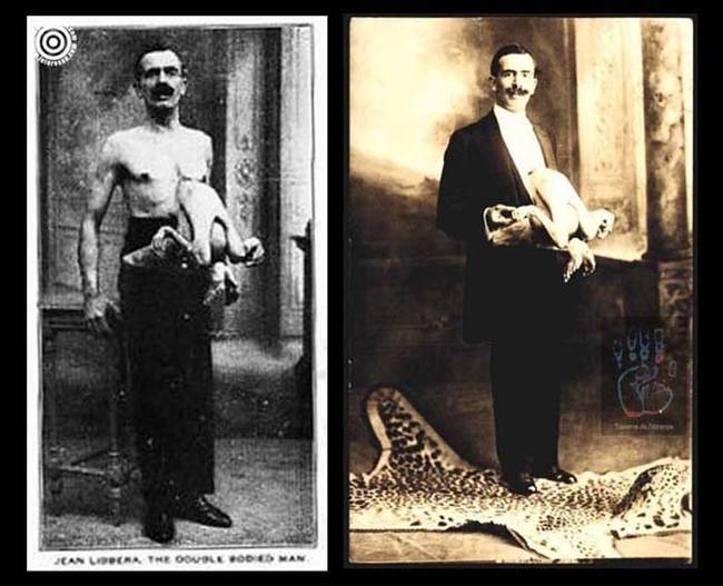 Jean was unique in that he had a parasitic twin attached to his chest area. X-rays revealed that a small head with a circumference of six inches was embedded inside Jean's body. He even named the twin Jacques.