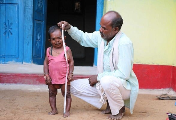 29 Inches Tall 50-Year-Old Man From India May Be The Shortest Man Alive